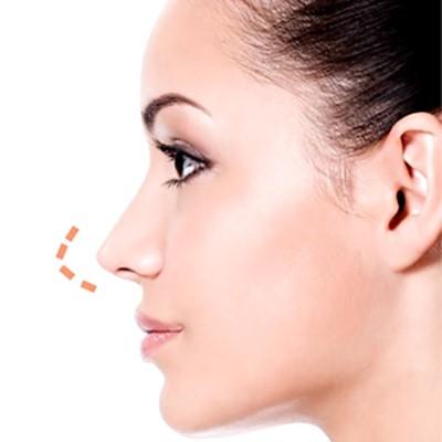 آمادگی برای عمل جراحی بینی چیست؟