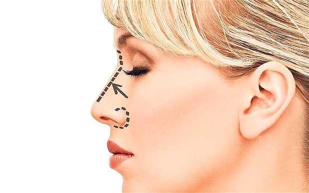 برنامهریزی قبل از عمل بینی