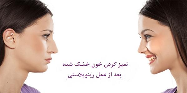 تمیز کردن خون های خشک شده داخل بینی