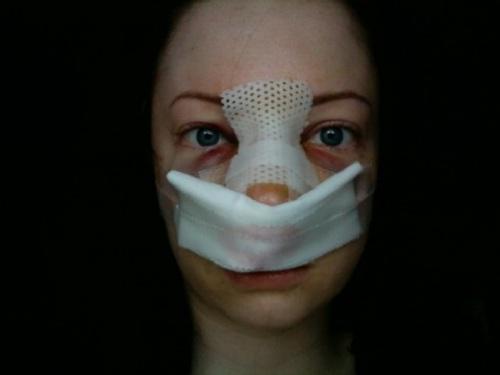 کبودی بینی پس از جراحی