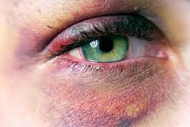 کبودی بینی
