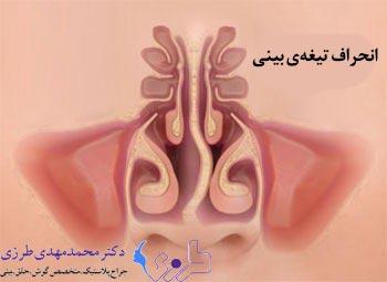 anatomibini6